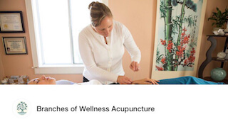 Acupuncture Photo
